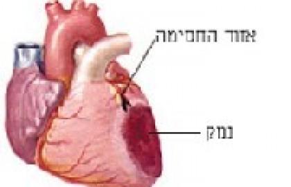 אוטם שריר הלב – התקף לב